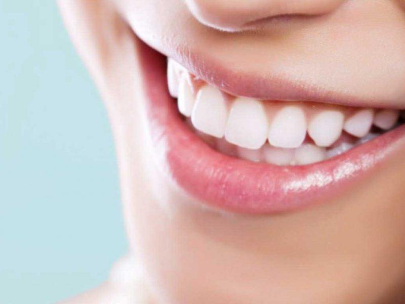 20 Yaş Dişleri Ameliyatla Mı Çekilir?