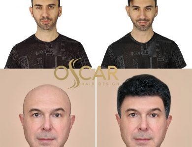 Protez Saç ve Bakım Merkezi Oscar Hair: Protez Saç Tasarım ve Bakım Merkezi